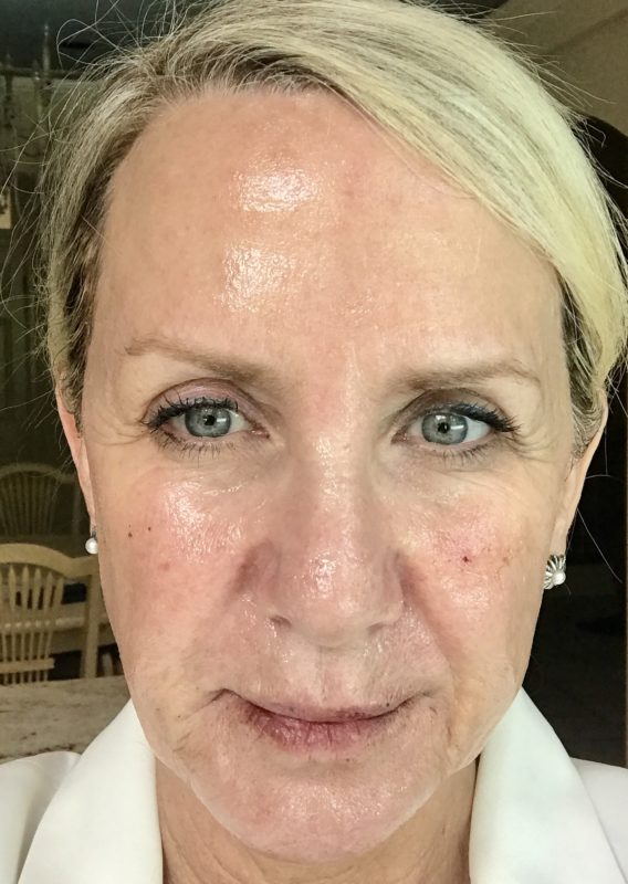 Feeling Fabulous With Dermal Filler And Secret RF - The Real